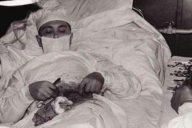 Үзенең сукыр эчәгесенә операцияне үзе ясаган